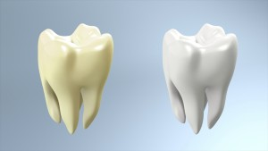 tooth compare white background